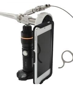 Video Otoscope and Otoscopy